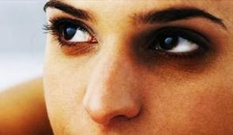आखों के काले घेरे हटाएगा घी का इस्तेमाल